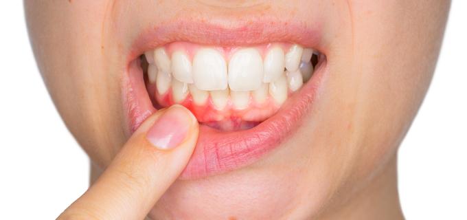Co takhle dentální hygiena, maminky?