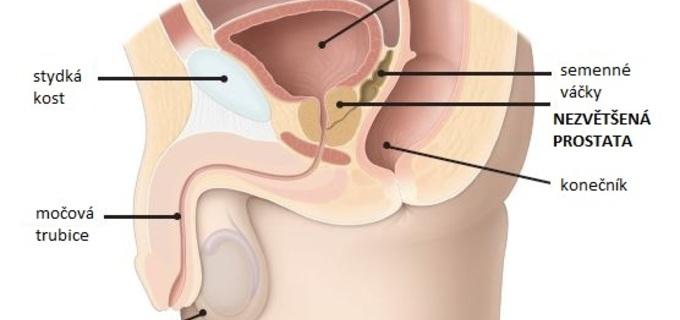 Prostata, téma, které mají doma většinou pod kontrolou ženy
