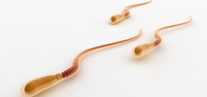 Spermie se vpraví přímo do vajíčka - ICSI