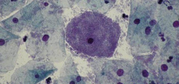 Co je bakteriální vaginóza a jak se bránit jejímu rozvoji