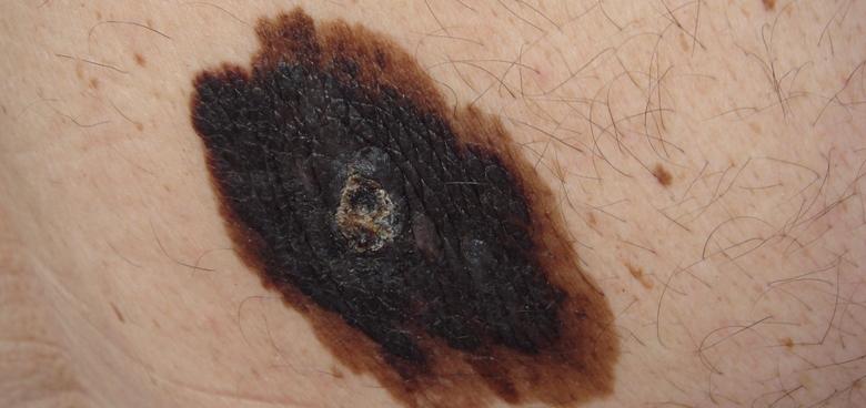 Melanom není jediným kožním nádorem, na jehož rozvoji se podílí slunění