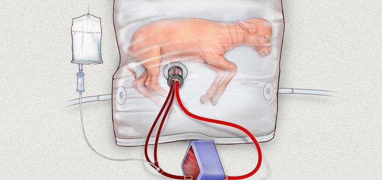 Umělá děloha? Vědci na ní už pracují
