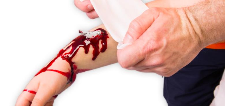 První pomoc při krvácení z otevřené rány