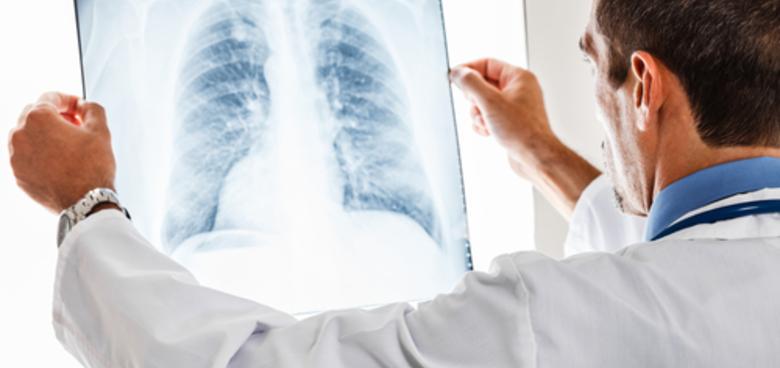 Těhotenství a rentgen