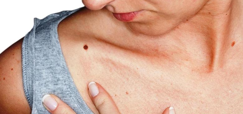 Infekce lidským papilomavirem se týká všech. Není to jen o rakovině děložního čípku, ohroženi jsou i muži