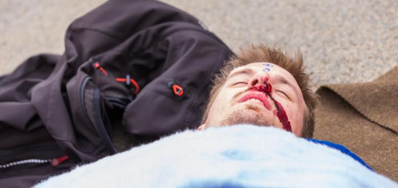 Když člověk nedýchá – resuscitace a umělé dýchání