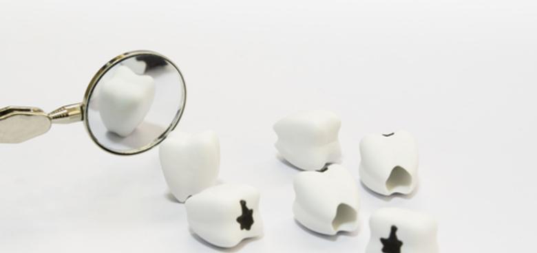 Jak jsme přišli k zubnímu kazu díl 8. Na co se nejčastěji ptáte