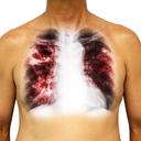 Očkováni proti tuberkulóze a otázky, na které rodiče chtějí znát odpověď