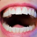 Krásně bílé zuby chce každý. Většina lidí však důvěřuje nesprávným postupům