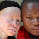 Magická krása albínů v lidech odpradávna probouzí fantazii