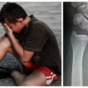 Jen vápník nestačí: Zlomeniny jsou zrádné i hojení trvá různou dobu
