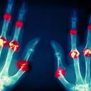 Revma můžete úplně vyléčit, pomáhá i biologická léčba