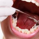 Jak jsme přišli k zubnímu kazu díl 6. Kazivost zubů v těhotenství