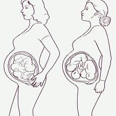 Jóga a fáze těhotenství