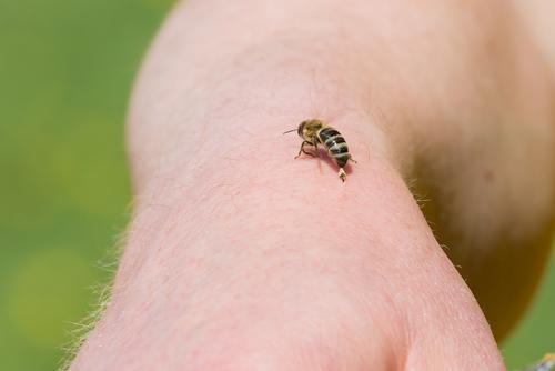 Co zabírá na bodnutí včely a vosy? Zde přinášíme pár tipů z lidového léčitelství