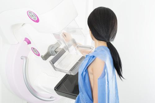 Akreditovaná centra pro mamografický screening
