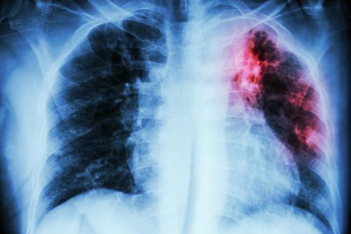 Rizikové skupiny a očkování proti tuberkulóze