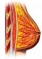 Před rakovinou prsu může ochránit plastická operace