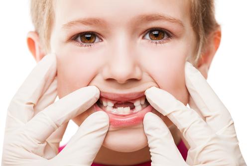 První zubní kazy dostaly název po medu