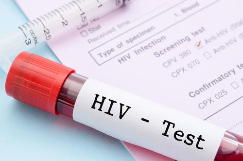 Seznam testovacích míst na HIV