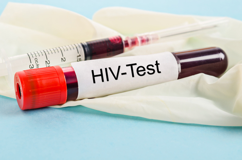 Součástí těhotenských vyšetření je i test na HIV