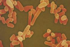 V loňském roce u nás zemřelo na tuberkulózu šest dětí