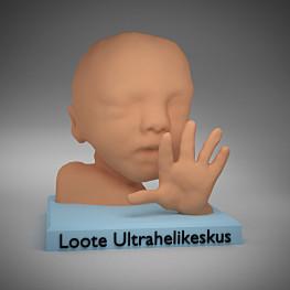 Vzpomínka na těhotenství? Plod vytištěný ve 3D technologii
