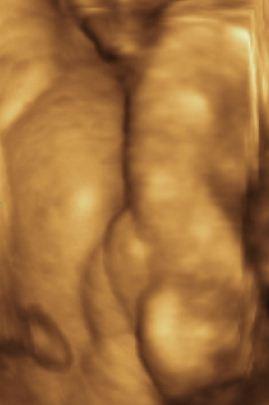 Holčička - 3D ultrazvuk