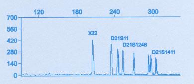 Amnio PCR