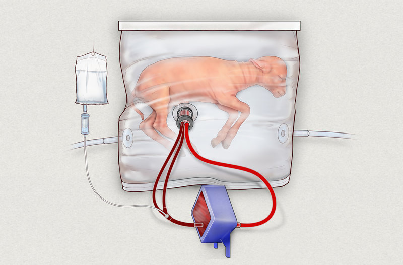 Umělá děloha